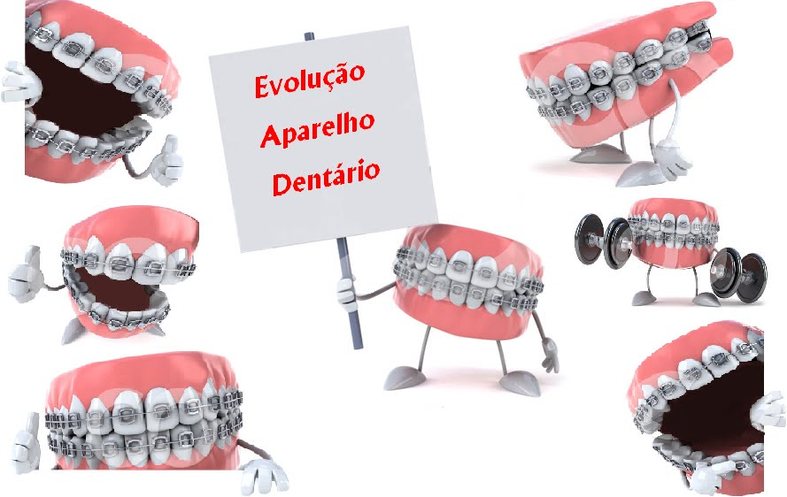 Evolução Aparelho Dentário