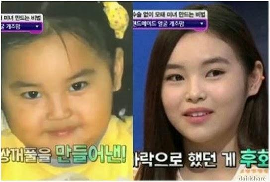 Ibu Guna Urutan Dan Sudu Sejuk Untuk Anak Jadi Lebih Cantik Di Korea