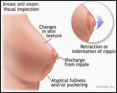 Image Obat yang Ampuh Mengobati Kanker Payudara
