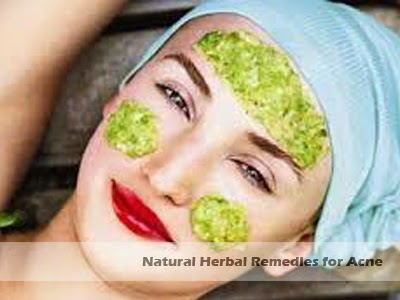 natural herbal remedies for acne