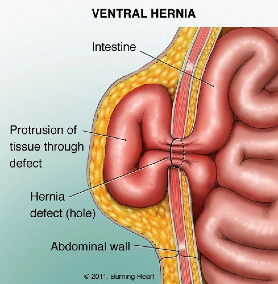 Ramayya Pramila Urology Hospital: HERNIA:WHAT IS HERNIA?WHY AND ...