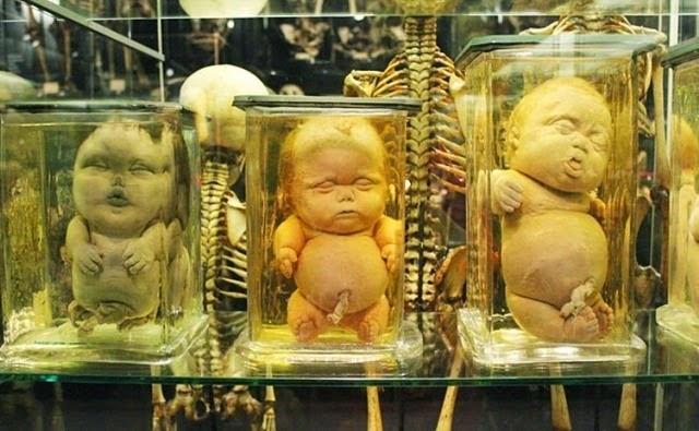 Fantastic Human Anatomy Museum Gallery Internal Organs Diagram