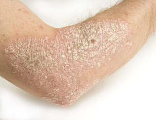 Diagnosing Dermatitis – 1/4/12