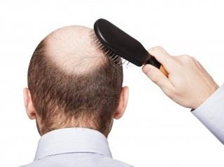 Gravitasi bisa picu rambut jadi botak?