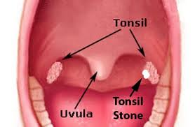 Tonsil Bad Breath and Tonsil Stones   Fauquier ENT Blog