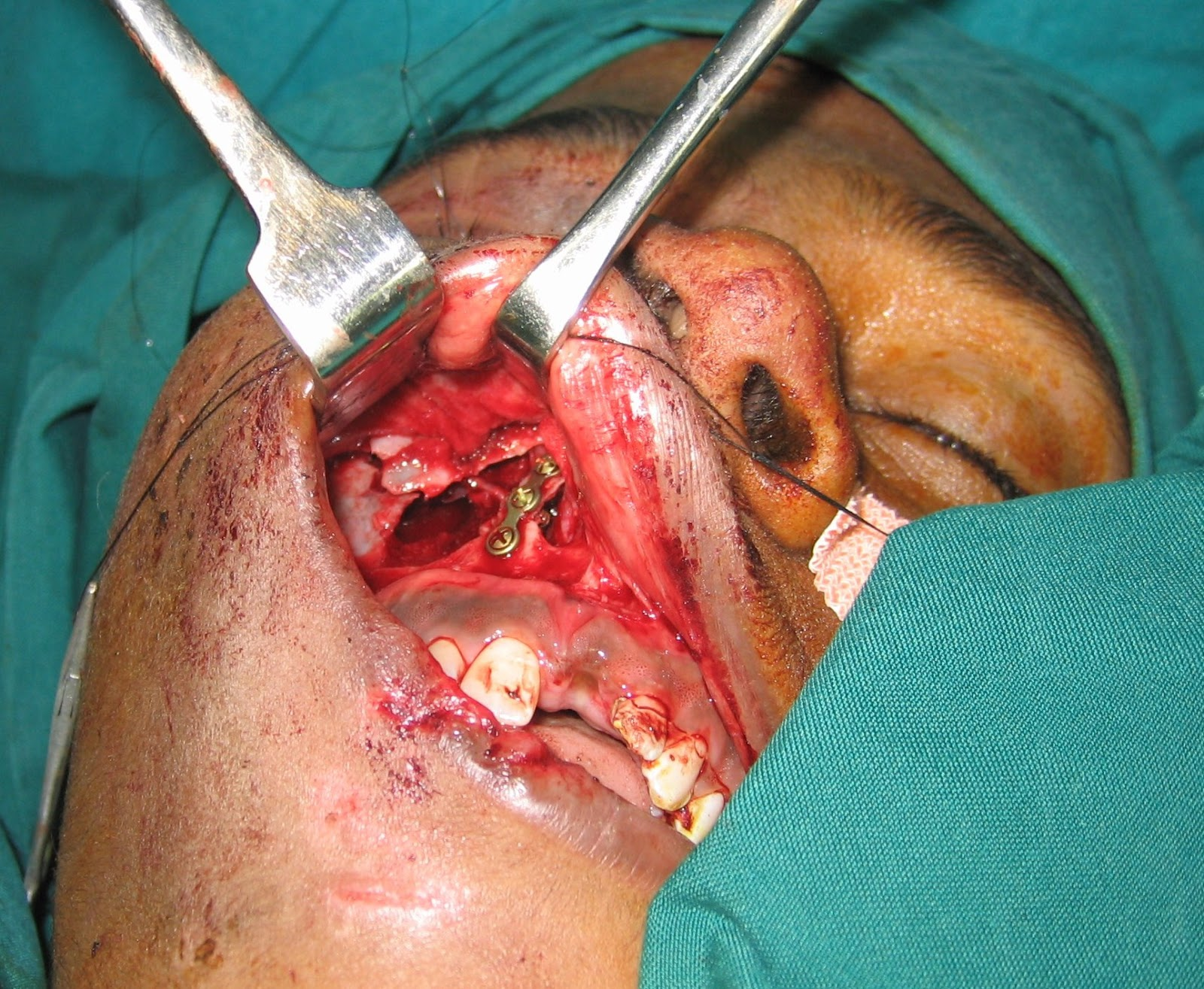 Blow Out Fracture Orbit With Fracture Maxilla Facio