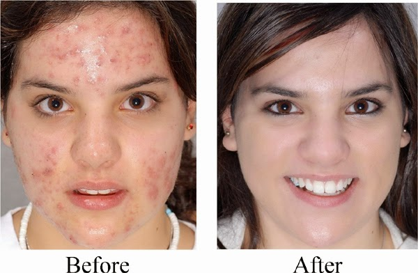 Acne After Accutane Treatment