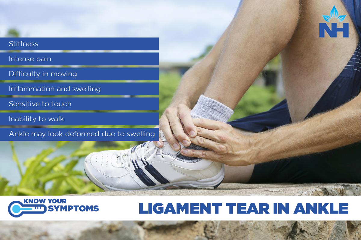 Ligament Tear in Ankle