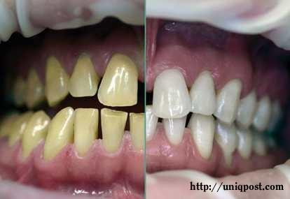 For Softskill Cara Membuat Gigi Kuning Menjadi Putih