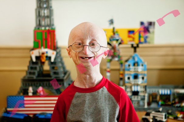 Sam-Berns-Progeria