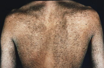 extremely dry cracked skin
