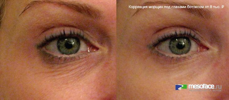 Биоревитализация уберет морщины под глазами
