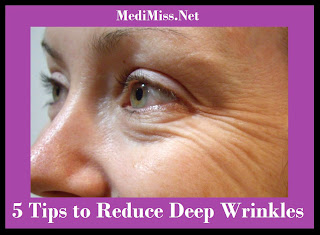 5 Tips to Reduce Deep Wrinkles