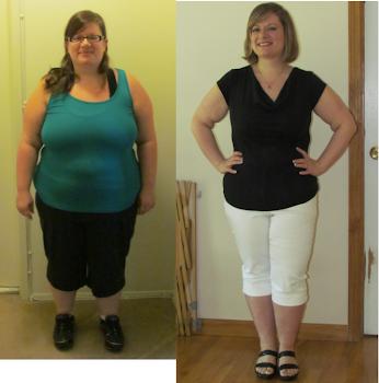 11 months post-op