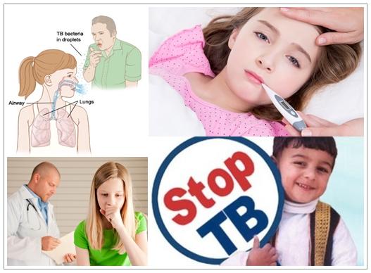 Cara Mengobati Tuberkulosis (TBC) Pada Anak Yang Aman Dan Alami
