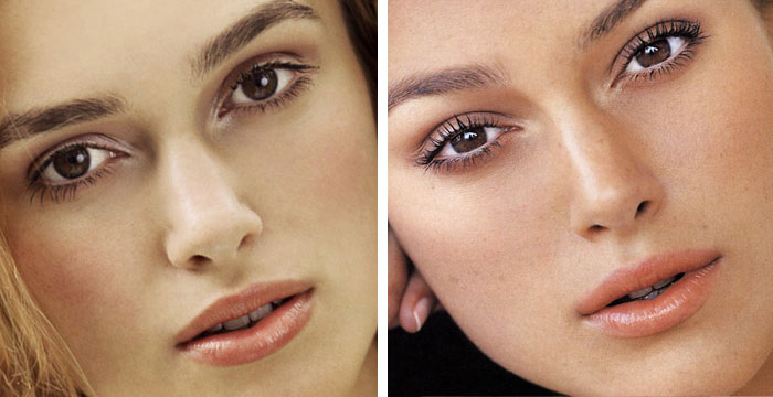 chatter busy keira knightley cosmetic surgery