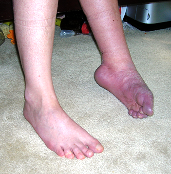 tarsal tunnel syndrome steroid injection
