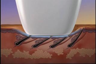 depilacja laserowa - opis i zabieg