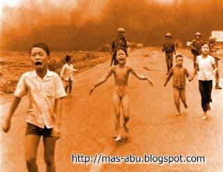 Foto-foto Bersejarah di Dunia - Korban Napalm