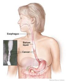 Cancer de Esofago, lenta e ansiosa agonia