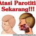 Obat Parotitis (Mumps Atau Gondongan) Pada Dewasa