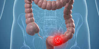 New Stem Cell Population Important In Colon Cancer Identified