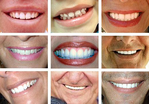 Foto de distintas sonrisas de diferentes personas (hombres y mujeres)