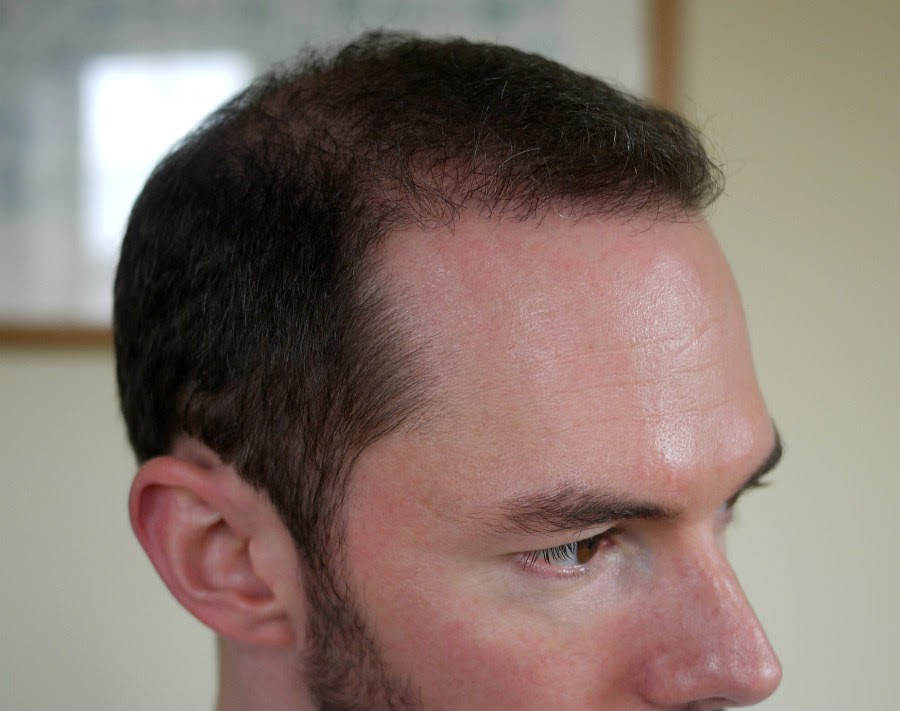 Istanbul Hair Transplant Blog Fue Fut Combined Procedure 85