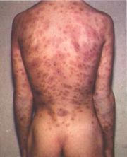 syfilis wiki snuskfilm se