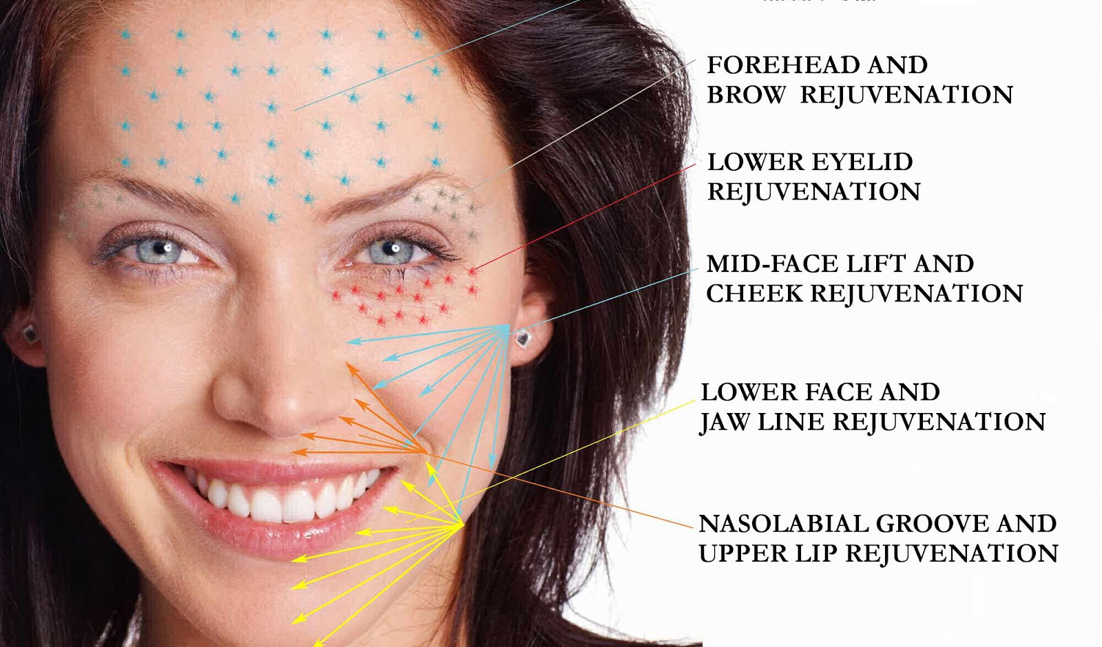 Love Your Skin Platelet Rich Plasma Prp Treatment Facts And Results