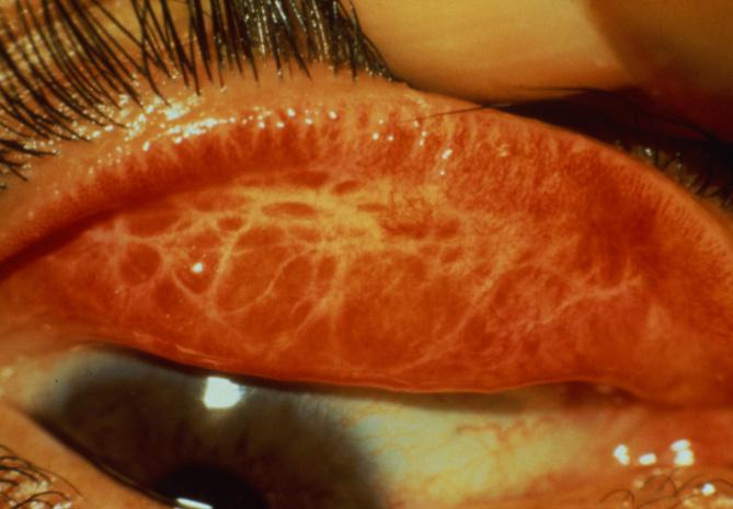 se ve como esta el párpado afectado por el tracoma