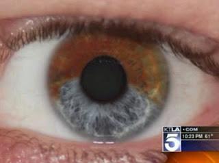 Cambiar color de ojos laser