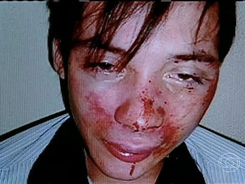 Jovem é agredido em SC e acusa seguranças de boate de homofobia