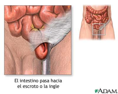 Los aparatos a la osteocondrosis el tratamiento