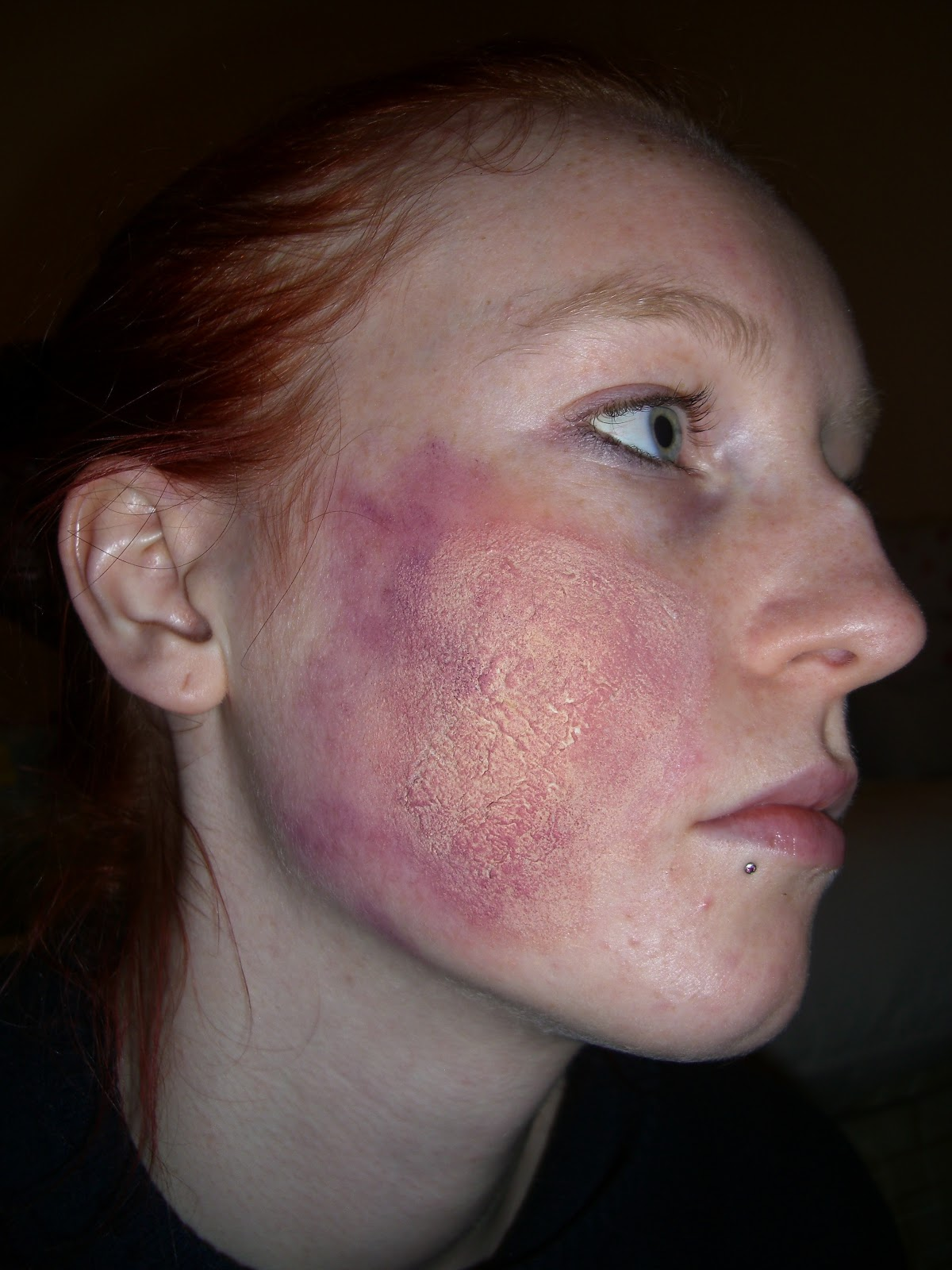 1000+ images about Grossies and gories bruises on ...