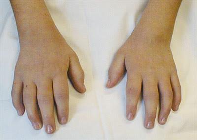 Juvenile Arthritis In Children Symptoms And Treatment