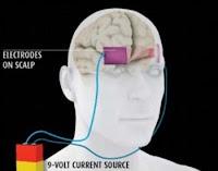 Setrum Listrik Meningkatkan Kecerdaskan Otak