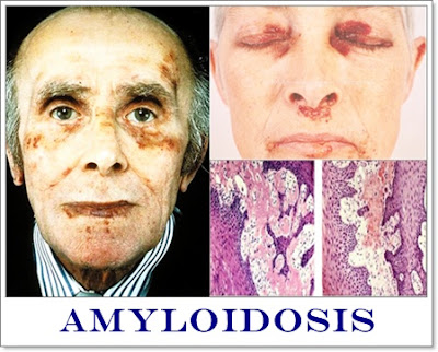 Obat Amyloidosis Herbal