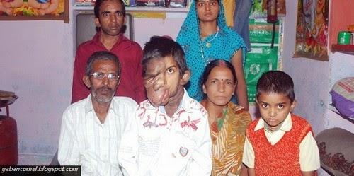 Dianggap Raksasa Kerana Wajah Buruk Kanak kanak Ini Dilarang Bersekolah