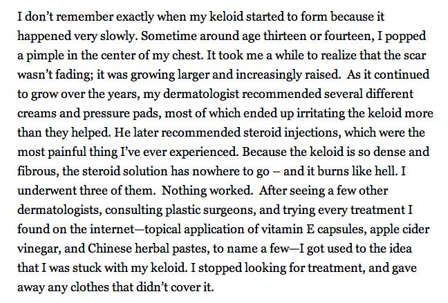 steroid shots keloid scars