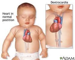 Penyakit Jantung Pada Anak