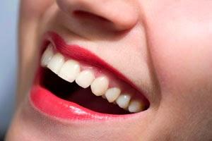 Clareamento dental como fazer e preços