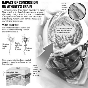 nfl concussions and their long term effects essay How the nfl manipulates cte / concussion research  of money to research  for cte (chronic traumatic encephalopathy),  a research paper highlighting  the connection between concussions  but as with any very large company that  gives money to research a certain topic, they expect certain results.