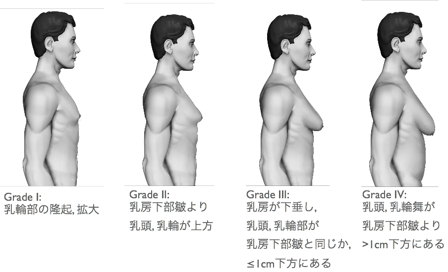 化 症 女性 乳腺