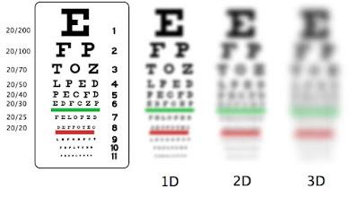 Myopia treatment in Vancouver, BC.