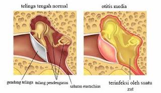 Cara Cepat Mengobati dan Menyembuhkan Radang Telinga