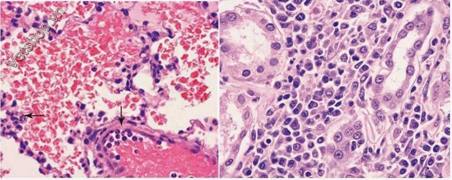 Hình 7: (hình phải) Xuất huyết phổi cấp tính ở chó nhiễm leptospira cấp tính. Phế nang có chứa một số lượng lớn hồng cầu thoát mạch Lưu ý vùng rìa của bạch cầu trung tính trong mạch máu (mũi tên)(nhuộm H&E, × 400).  (hình phải)Tổn thương thận khi nhiễm Leptospira bán cấp tính, tiểu quản thận trong vùng vỏ được chia cắt bởi nhiều tương bào, một số ít đại thực bào và phân tán các bạch cầu trung tính (nhuộm E&H, × 400 ).