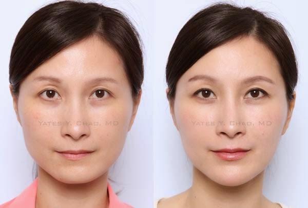 趙彥宇醫師示範微整注射,晶亮瓷,玻尿酸、聚左旋乳酸、塑然雅、舒顏萃