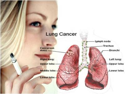 Common Early Signs That You May Have Lung Cancer. Lucky Scooter Stickers. Heights Houston Murals. Prop Banners. Cny Logo. Men Signs Of Stroke. Velocity Logo. Artist Alley Banners. Online Coupon App