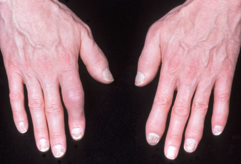 phototake rm photo of psoriatic arthritis